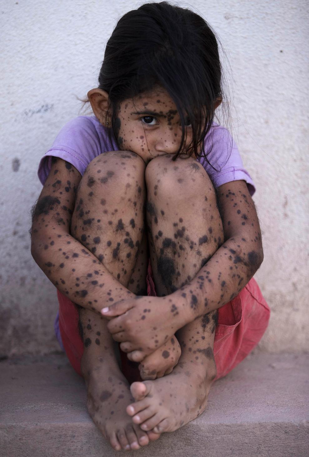 体中に斑点のあるアルゼンチンの少女