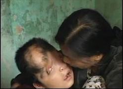 ベトナム、奇形児と母親