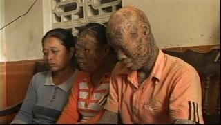 ベトナム、皮膚ポリフィリン症の姉弟